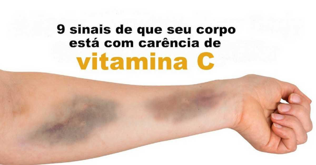 SINAIS DE QUE SEU CORPO ESTÁ COM CARÊNCIA DE VITAMINA C