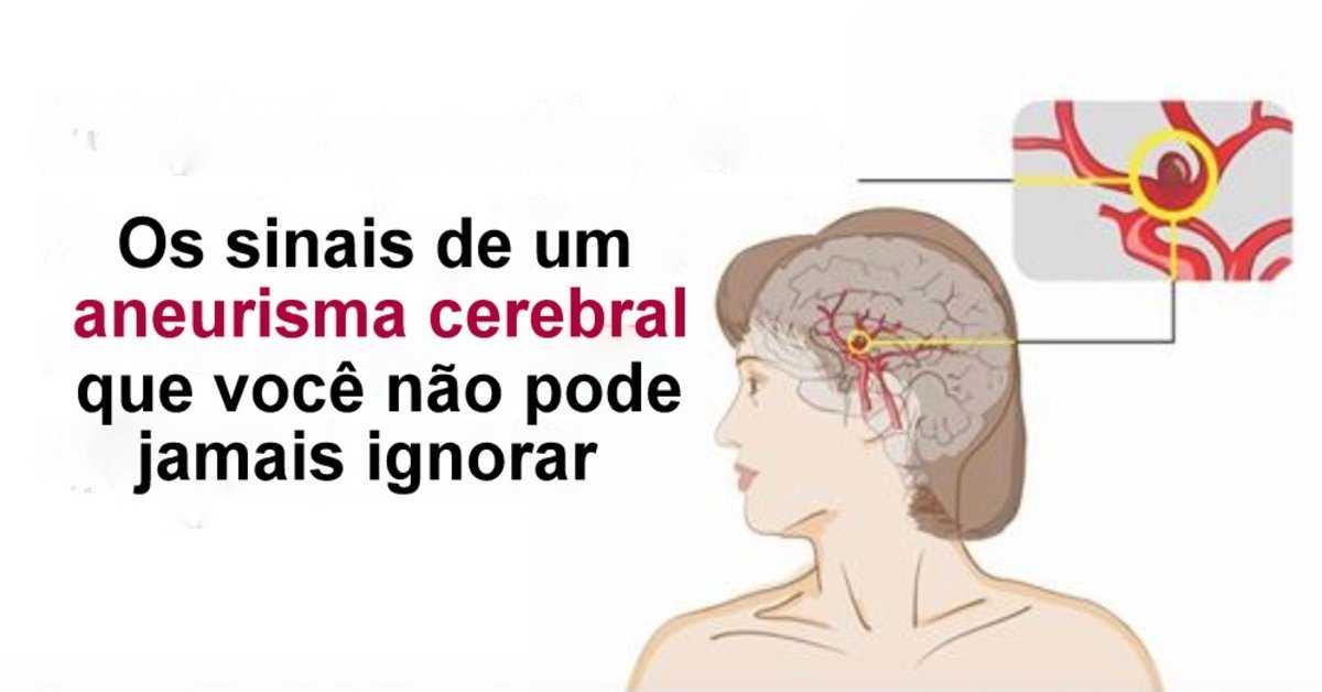 sinais de um aneurisma cerebral