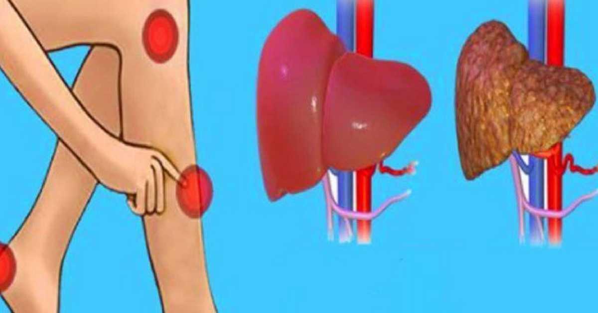 sintomas de que o seu fígado está intoxicado