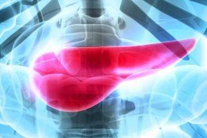 Sinais que podem indicar câncer de pâncreas exócrino