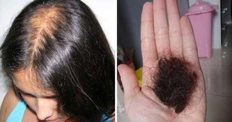 doenças graves que estão relacionadas à queda de cabelo