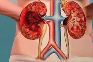 7 sinais que alertam sobre uma doença nos rins 1