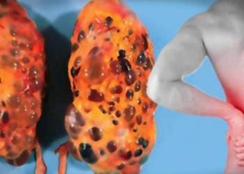 sinais que alertam sobre uma doença nos rins