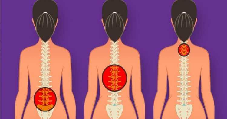 Quando sentimos dor lombar, a primeira reação que temos é alongar o corpo. Veja os melhores exercícios para aliviar e até acabar de vez com a dor nas costas.