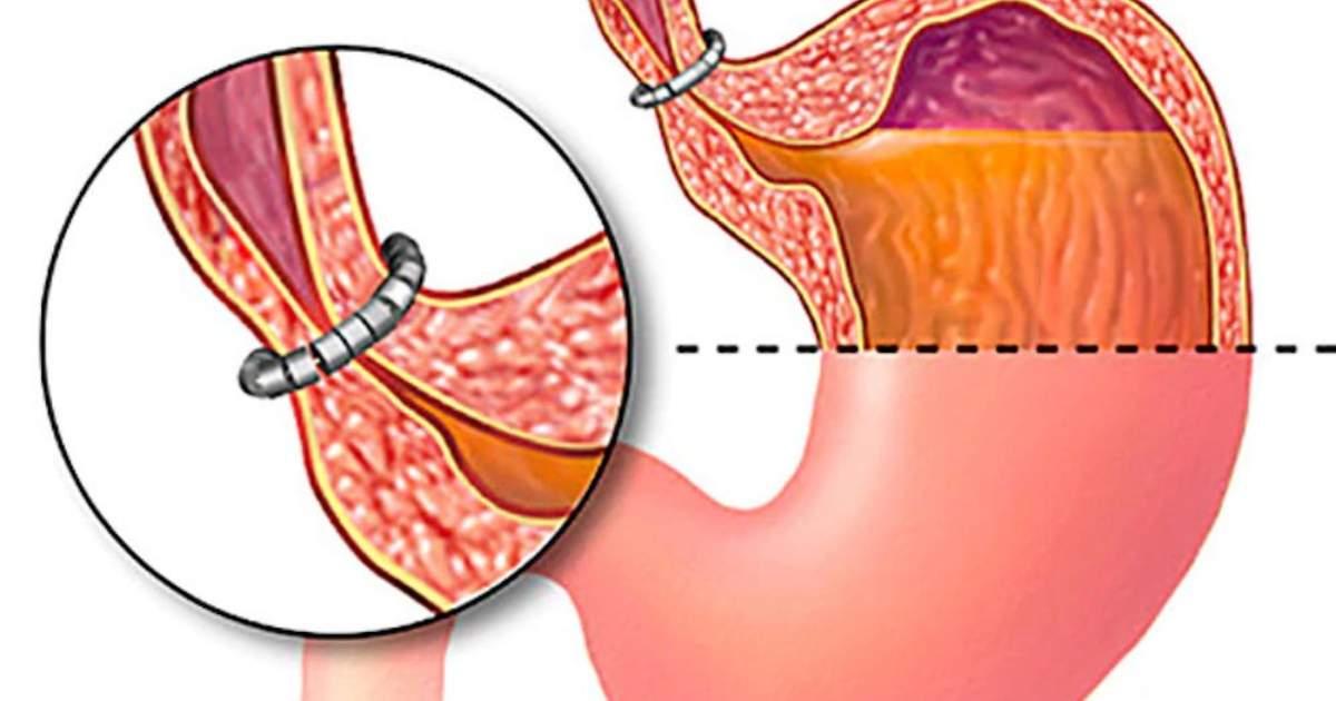 refluxo e queimação no estômago