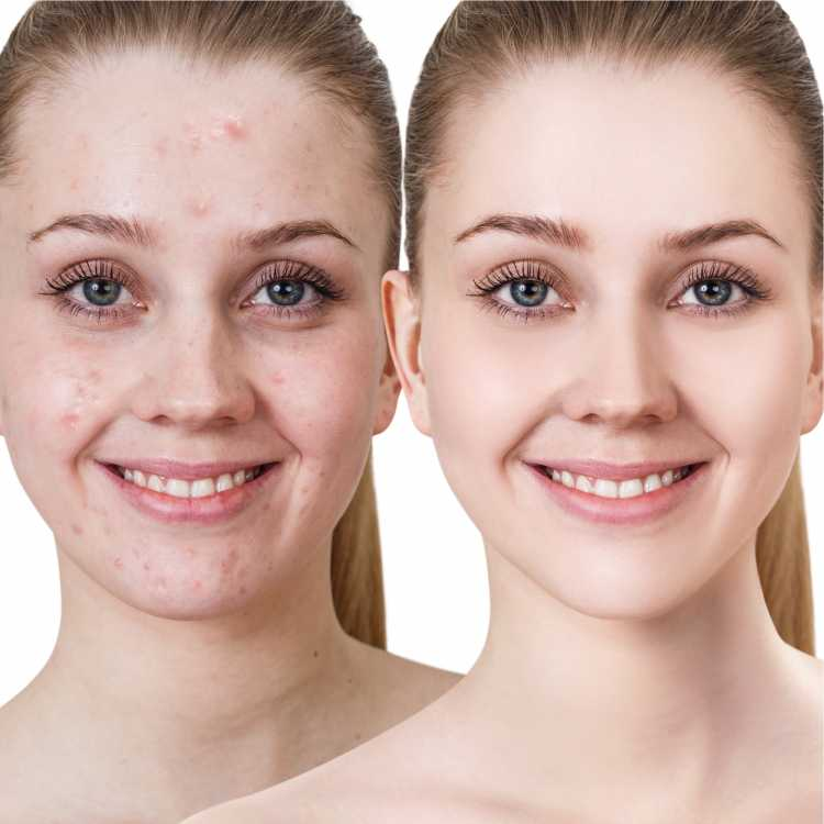 Maquiagem para sessão de fotos corrigindo imperfeições