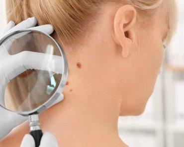 Sintomas de Câncer de Pele
