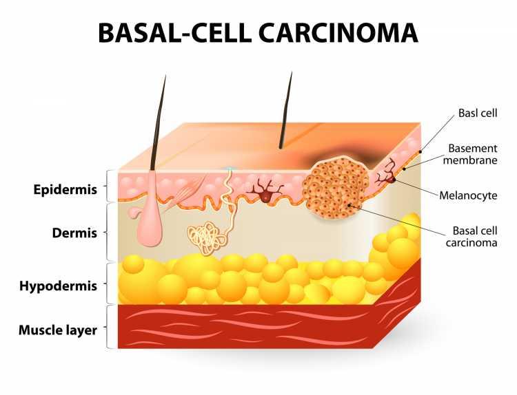 Sintomas de Câncer de Pele carcinoma basomolecular