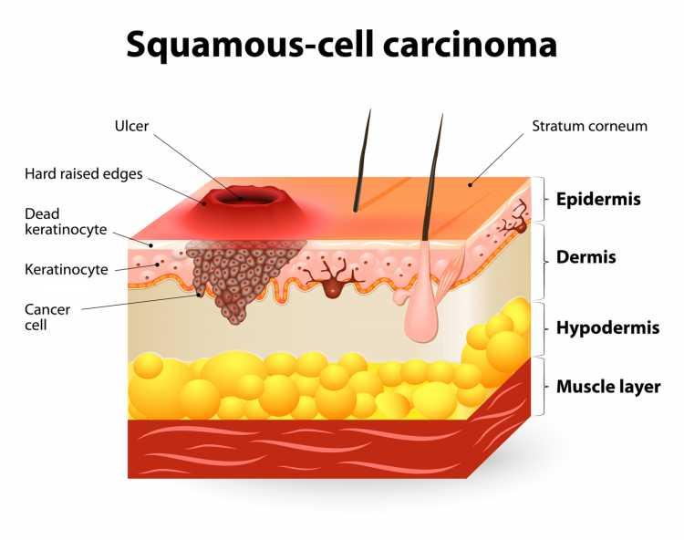 Sintomas de Câncer de Pele carcinoma de células escamosas
