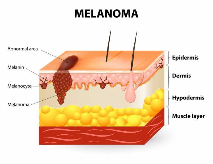 Sintomas de Câncer de Pele melanoma