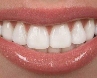 Mulher com facetas de porcelana nos dentes