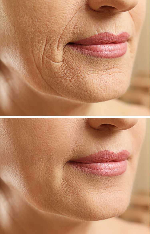 Fios de sustentação facial antes e depois