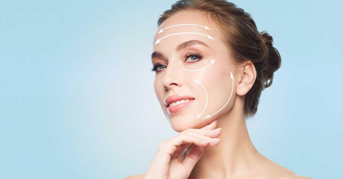Fios de sustentação facial