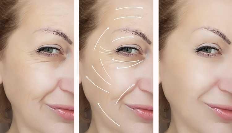 Resultado do Lifting facial com fios de sustentação
