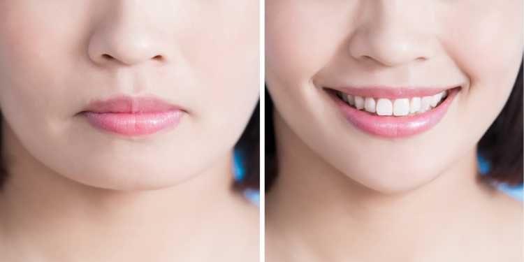 cirurgia plástica das bochechas