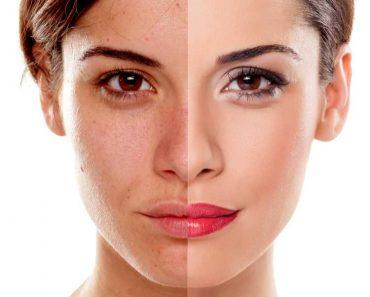 Maneira certa de usar a maquiagem para disfarçar manchas no rosto 1