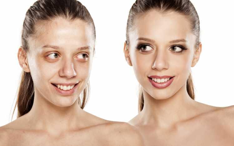 disfarçar manchas no rosto antes e depois