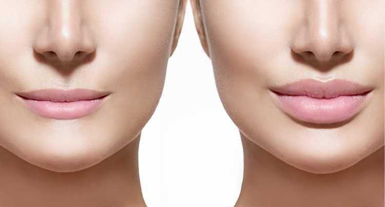 enxerto de gordura nos lábios