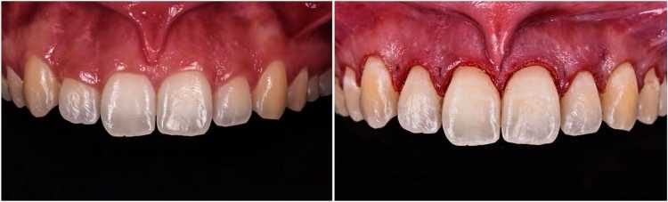 gengivoplastia é um dos tratamentos estéticos dentais mais cobiçados