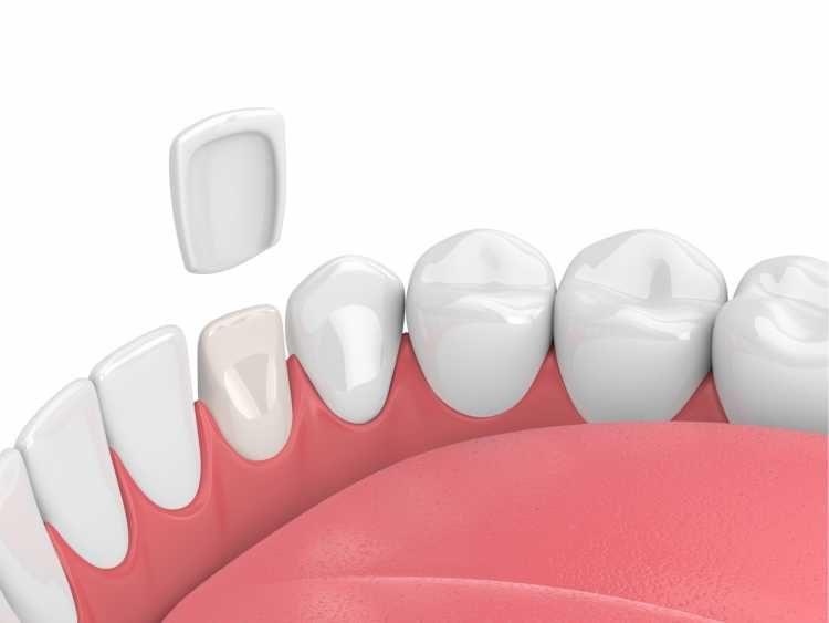 lentes de contato dental é um dos tratamentos estéticos dentais mais cobiçados