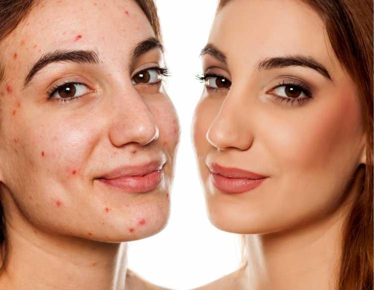 maquiagem para disfarçar manchas de acne
