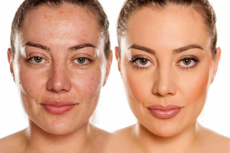 maquiagem para disfarçar manchas no rosto antes e depois