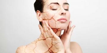 Dicas para evitar o ressecamento da pele no inverno