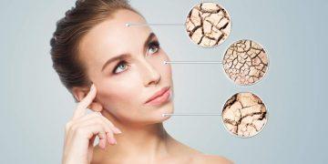 Problemas com a pele ressecada