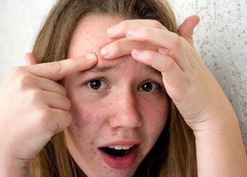 Óleo de jojoba no rosto para curar acne - [Foto: Canva]