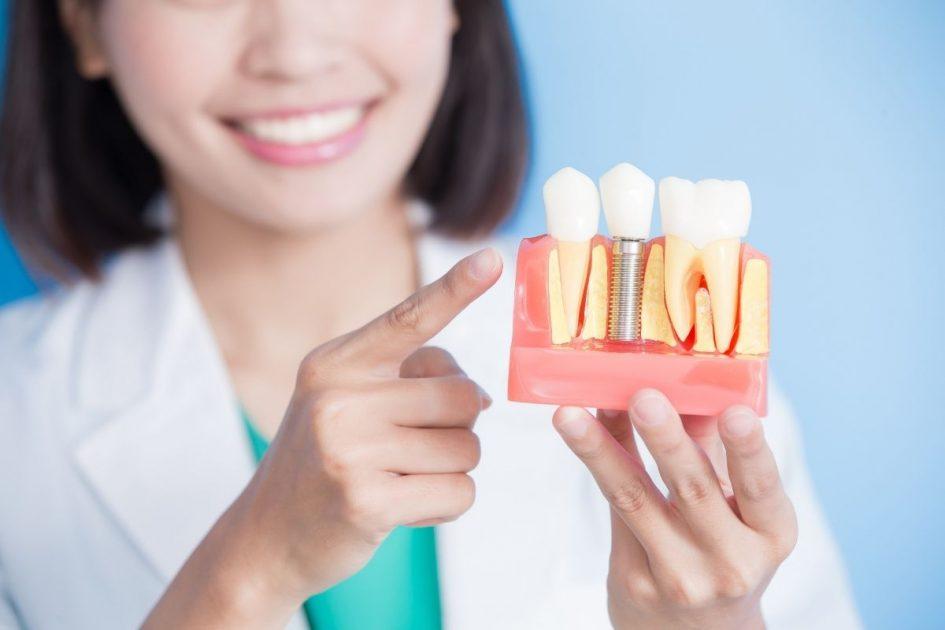 Implantes dentários também são procedimentos bucais para renovar sua autoestima