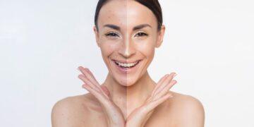 Benefícios do ácido glicólico para a pele